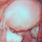 子宮内膜症の手術